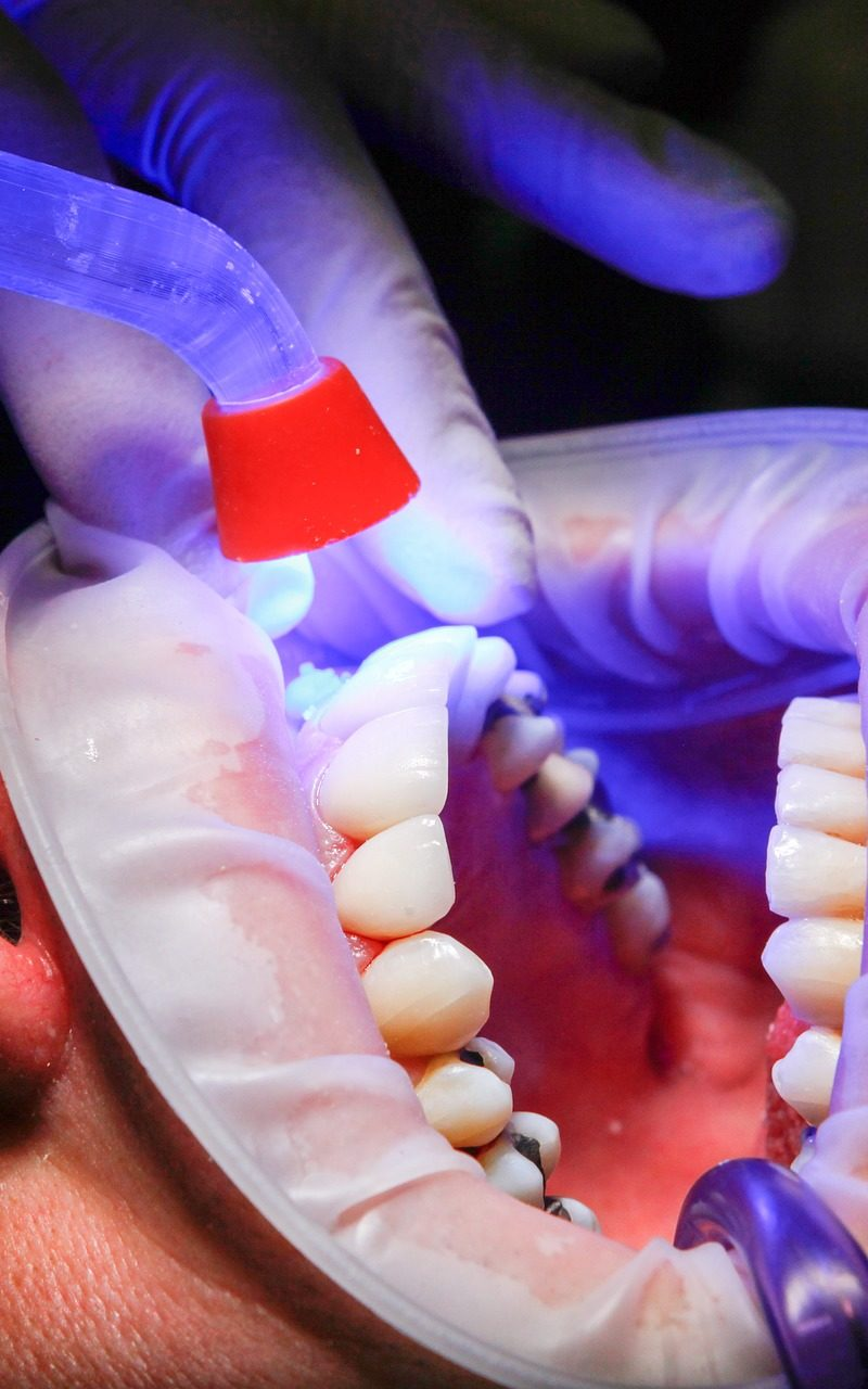Zły sposób żywienia się to większe braki w jamie ustnej oraz także ich utratę